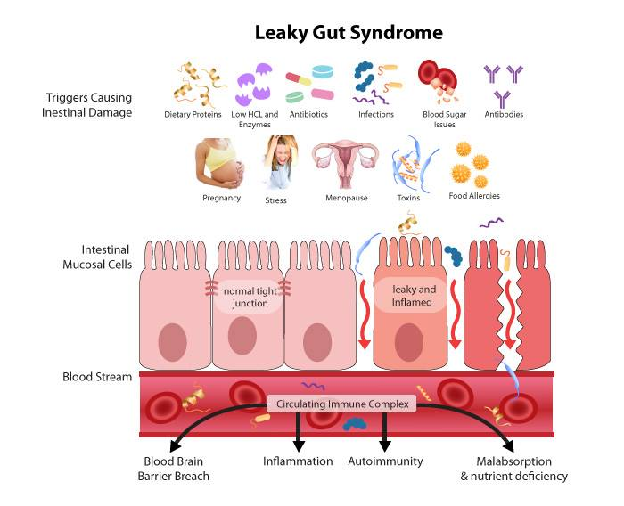 leaky gut image 1